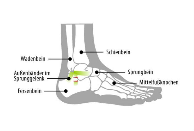 Fuß bänderdehnung