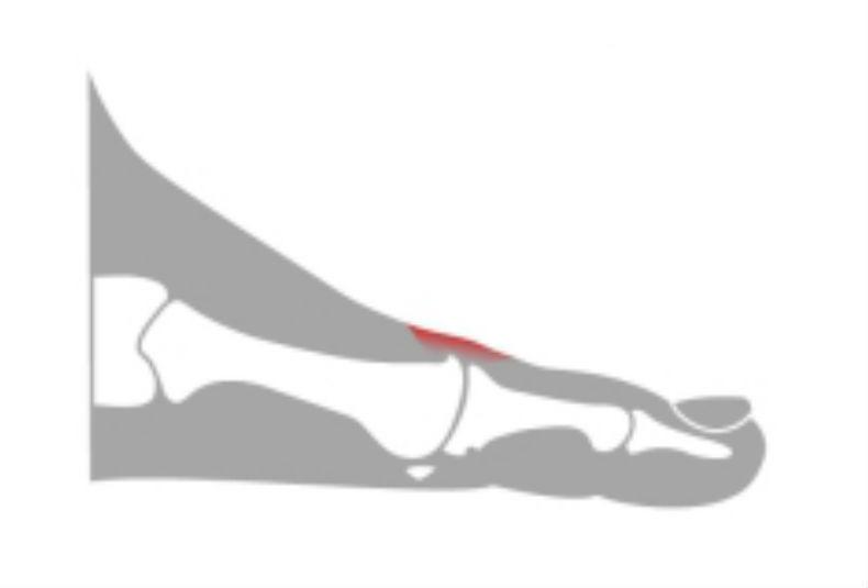 Der Zapfen auf dem Finger des Beines die Massage