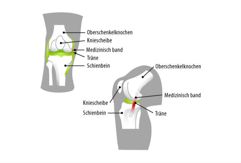 Schmerzen im Knie - was tun?