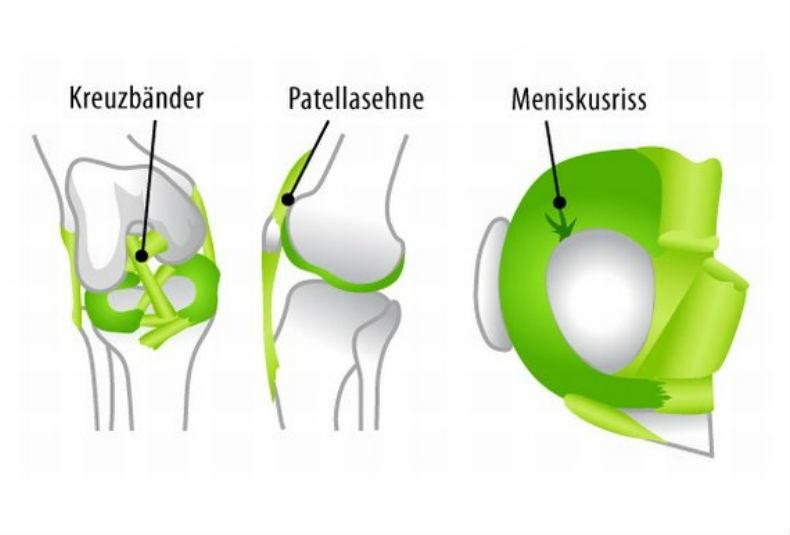 Knieschmerzen: Ursachen, Diagnose & Hilfe - Joggen Online