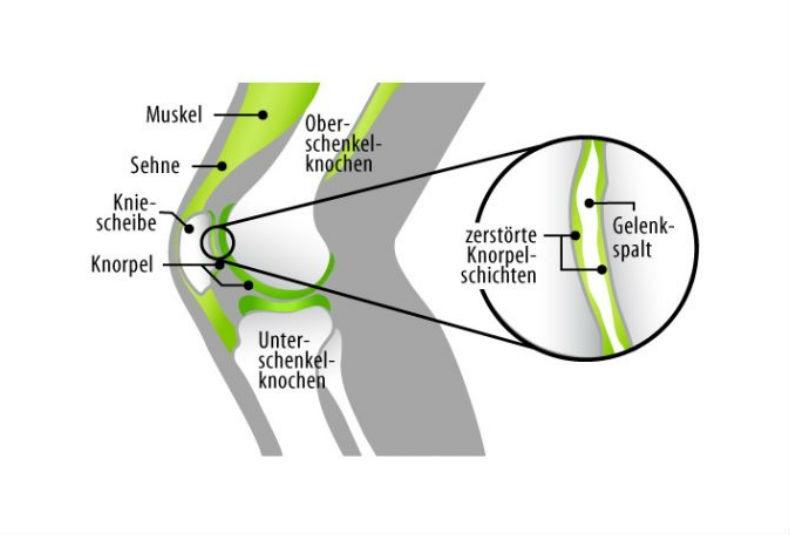 Beschwerden nach dem Joggen: Woher kommen deine Knieschmerzen nach dem Laufen?
